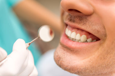 Common Treatments Offered By A Young Adult Dentist Office