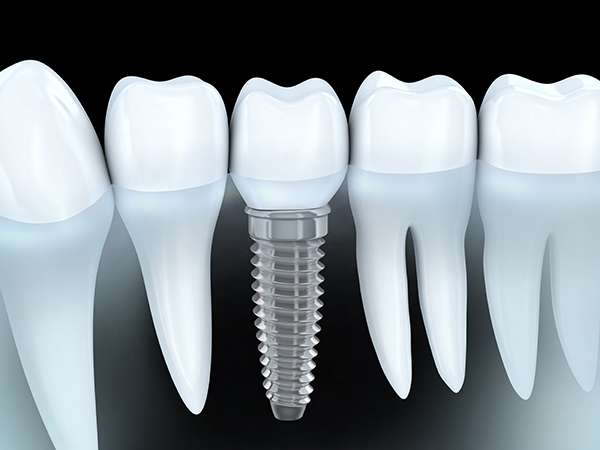 An Implant Restoration Is Your Alternative To Dentures